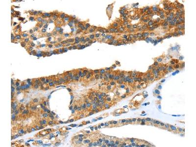 SNAI3 Polyclonal Antibody