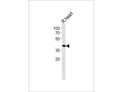TOMM40L Polyclonal Antibody