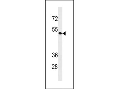 ZNF733 Polyclonal Antibody