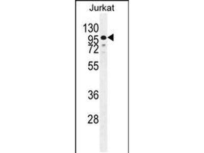 ZNF841 Polyclonal Antibody