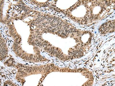 TIGD5 Antibody