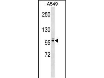 PLEKHG5 Polyclonal Antibody