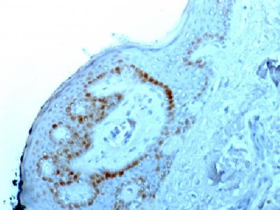 Anti-Human Nucleolar Antigen Antibody Clone NM95