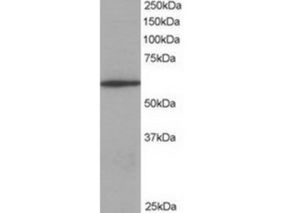 Goat Polyclonal Antibody against Coronin 1 / TACO