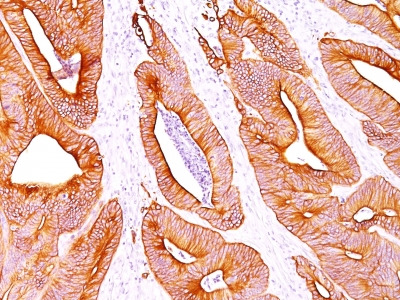 Anti-Cytokeratin Antibody Clone AE-1/AE-3