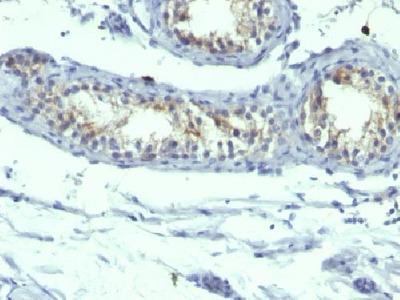 Anti-Prolactin Receptor Antibody Clone B6.2 + PRLR742