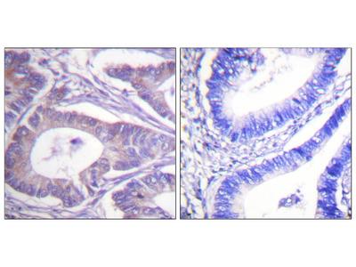 Vimentin Antibody: RPE