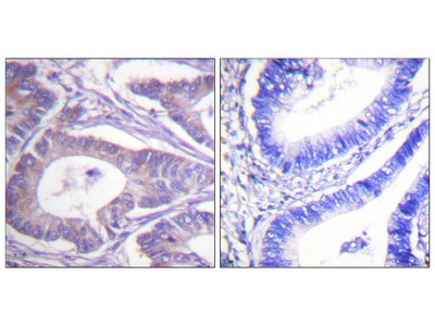Vimentin Antibody: HRP
