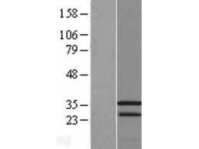 Transient overexpression lysate of calcium modulating ligand (CAMLG)