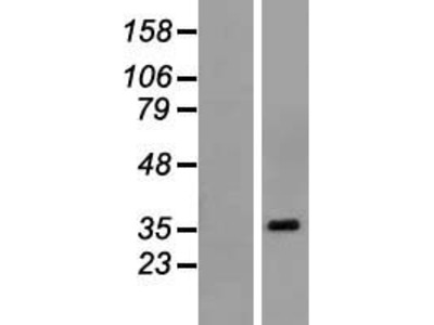Transient overexpression lysate of POU class 6 homeobox 1 (POU6F1), transcript variant 1