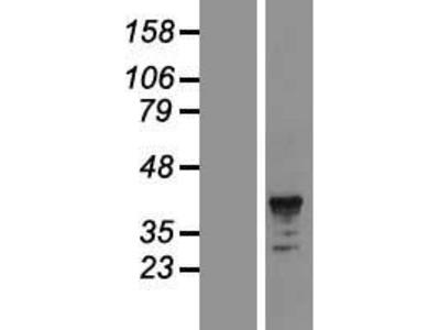 Transient overexpression lysate of Fc fragment of IgA, receptor for (FCAR), transcript variant 2
