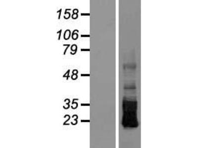 Transient overexpression lysate of crumbs homolog 3 (Drosophila) (CRB3), transcript variant 3