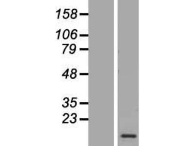 Transient overexpression lysate of calcium/calmodulin-dependent protein kinase II inhibitor 1 (CAMK2N1)