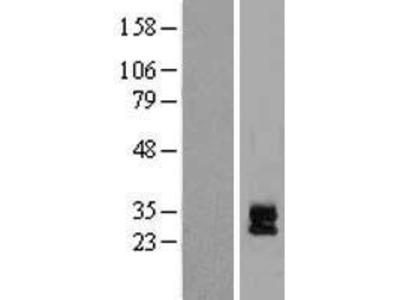 Transient overexpression lysate of DAN domain family, member 5 (DAND5)