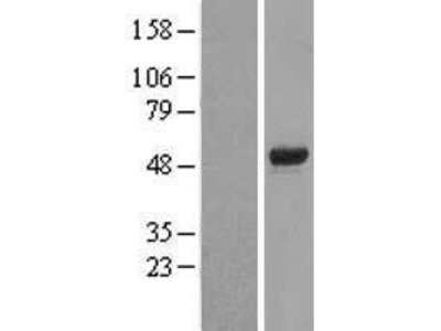 Transient overexpression lysate of forkhead box D4 (FOXD4)