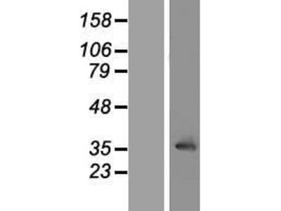 Transient overexpression lysate of leucine rich repeat containing 10 (LRRC10)
