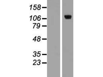 Transient overexpression lysate of E2F transcription factor 8 (E2F8)