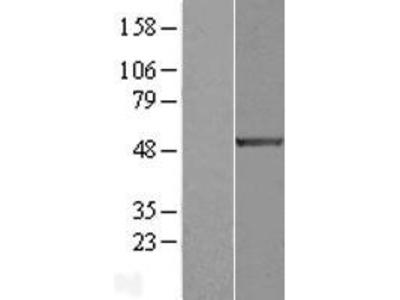 Transient overexpression lysate of E2F transcription factor 1 (E2F1)