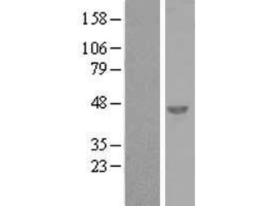 C6orf151 (SNRNP48) (NM_152551) Human Over-expression Lysate