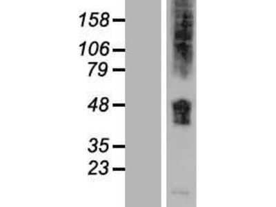 SLC36A1 (NM_078483) Human Over-expression Lysate