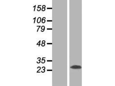 Transient overexpression lysate of reticulon 3 (RTN3), transcript variant 1