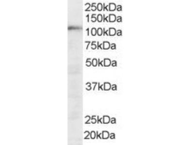 Goat Polyclonal Antibody against SART1