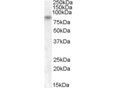 Goat Polyclonal Antibody against TRPV5