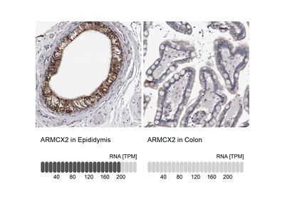 Anti-ARMCX2 Antibody