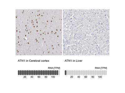 Anti-ATN1 Antibody