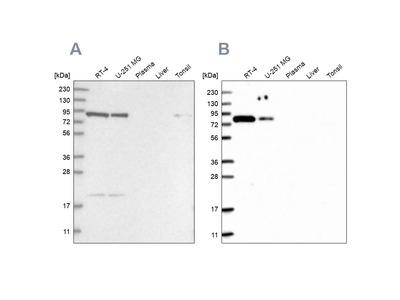 Anti-CHML Antibody