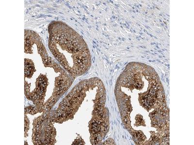 Anti-POMGNT2 Antibody