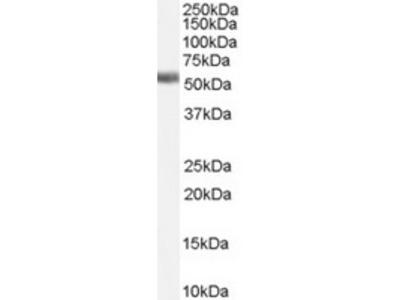 Goat Polyclonal Antibody against Farnesoid X receptor / HRR1
