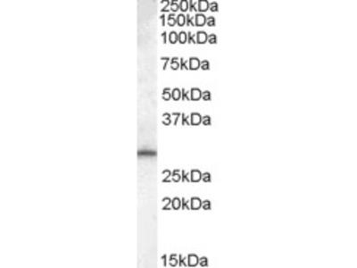Goat Polyclonal Antibody against MTHFD2L