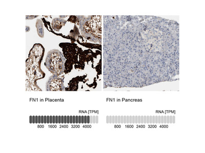 Anti-FN1 Antibody
