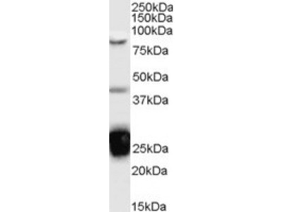 Goat Polyclonal Antibody against TIA1