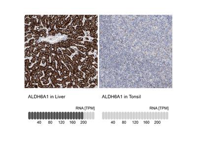 Anti-ALDH6A1 Antibody