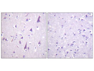 GFAP Antibody (Phospho-Ser38) (OAAF07655)