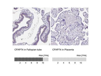Anti-CFAP74 Antibody