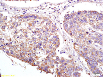 XAGE2 Antibody (OABF01773)