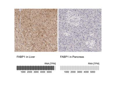 Anti-FABP1 Antibody