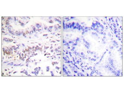 XRCC3 Antibody (OAAF07902)