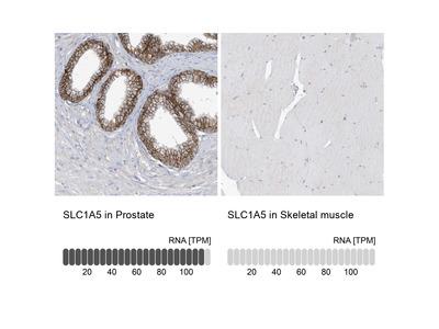 Anti-SLC1A5 Antibody