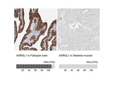 Anti-ASRGL1 Antibody