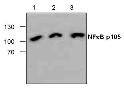 RABBIT ANTI NFkB p105