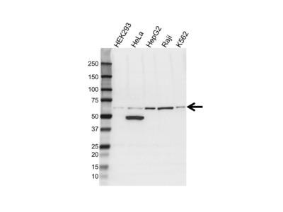 ALDH1B1 ANTIBODY WITH CONTROL LYSATE