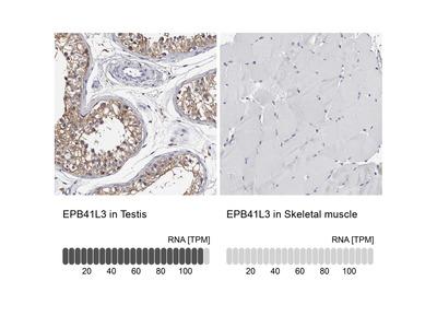 Anti-EPB41L3 Antibody