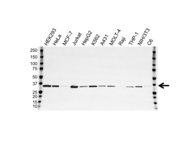 MOUSE ANTI THYMIDYLATE SYNTHASE