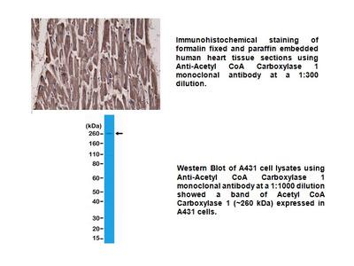 Anti- Acetyl-CoA Carboxylase 1, Rabbit Monoclonal Antibody