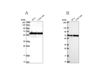 Anti-CCDC47 Antibody
