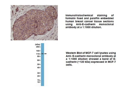 Anti-E-Cadherin (CDH1) Rabbit Monoclonal Antibody
